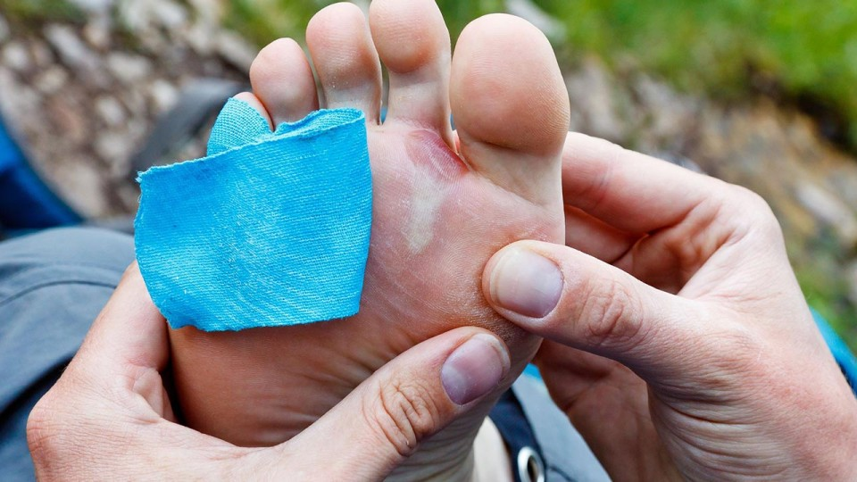 Bad Running Habits that Let Blisters Throw Runners Off Stride