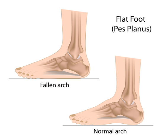 8832898f31b5 How Does Running Affect Me If I Have Flat Feet