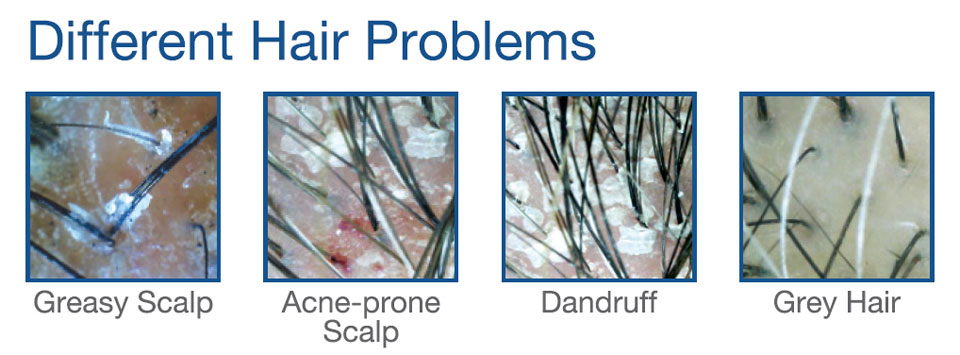 Got Hair Issues, Fellow Runners? Trichologists Can Resolve Them!
